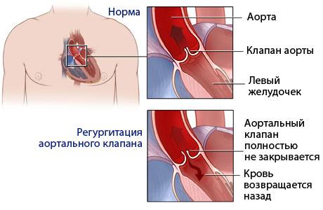 Аортальные пороки сердца: недостаточность, стеноз. Этиология ...
