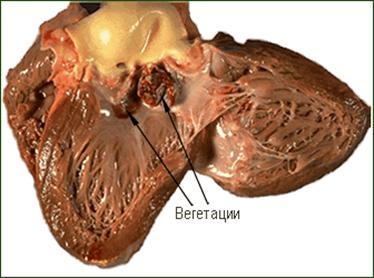Миокардит - infarktynet